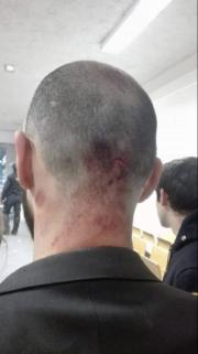 Selon plusieurs étudiants, les forces de l'ordre auraient eu recours à la force pour évacuer l'enceinte. Capture d'écran sur Facebook