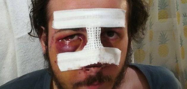 Thomas, grièvement blessé par la police : l'histoire d'un classement sans suite