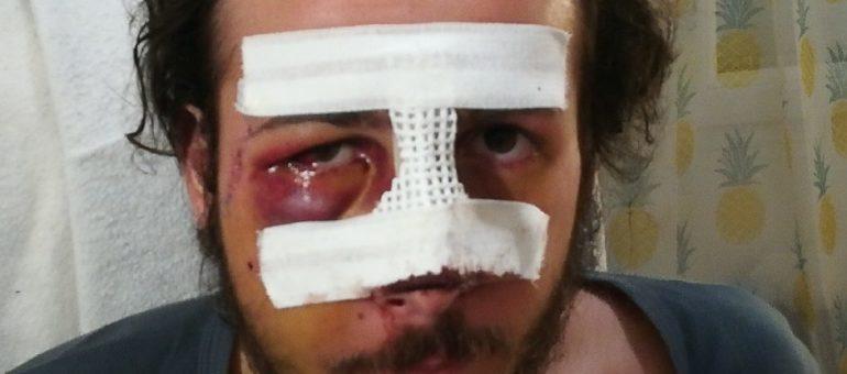 Thomas, grièvement blessé par la police pendant une manif«gilets jaunes»: «combien de mutilés avant que ça ne s'arrête ?»