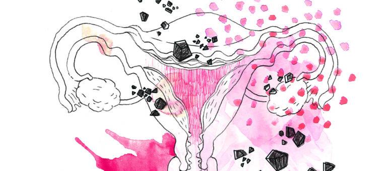 Des barbelés dans le ventre : l'endométriose, un cancer qui ne tue pas