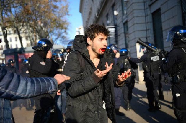 Arthur Naciri en sang après son passage à tabac par des policiers à Lyon le 10 décembre. ©Bastien Doudaine
