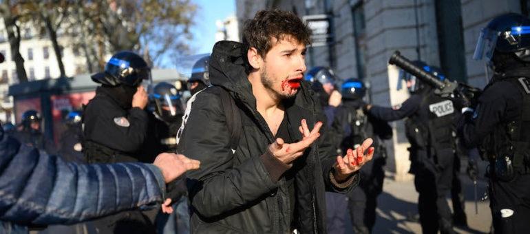 À Lyon, des policiers renvoyés en correctionnelle pour le passage à tabac d'Arthur Naciri