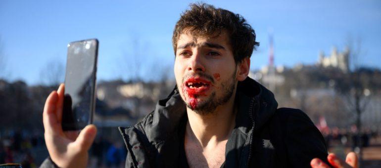 Arthur, 23 ans : «Des policiers m'ont cassé la gueule, littéralement»