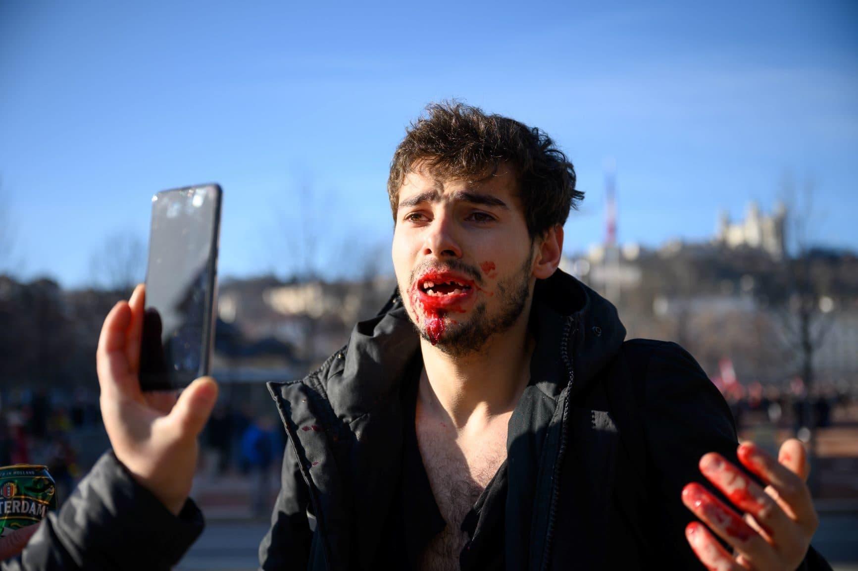 Arthur Naciri, quelques minutes après avoir été passé à tabac par des CRS place Bellecour. Crédit : Bastien Doudaine.